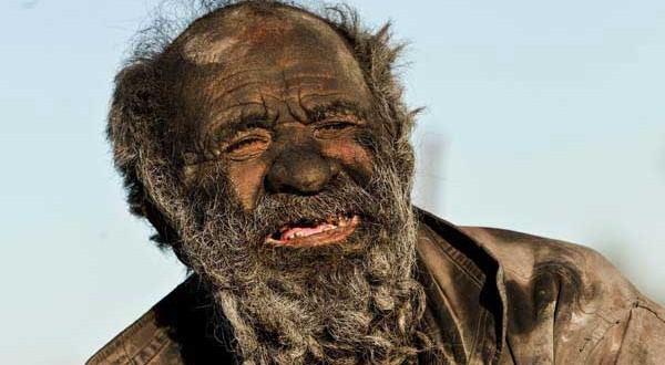 Amoo Hadji : l'homme le plus sale du monde – 60 ans sans se laver