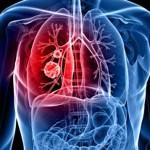 Le cancer - Un coût de plus de 4 G$ en 2013 : Un risque d'effondrement du système