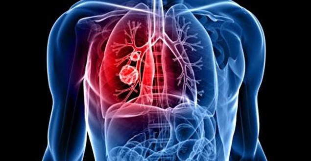 Le cancer – Un coût de plus de 4 G$ en 2013 : Un risque d'effondrement du système