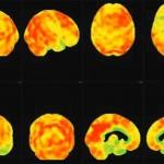 Une nouvelle technique d'imagerie cérébrale pour mieux détecter les démences