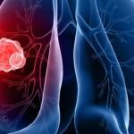 Le cancer du poumon est passé de la troisième à la deuxième place chez les Canadiennes
