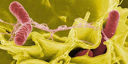 Bactérie Salmonella : Des cas d'infection enregistrés au Canada